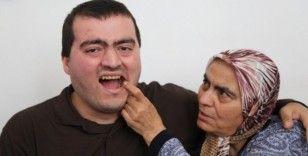 Zihinsel engeli Tayfun üç aydır diş ağrısı çekiyor