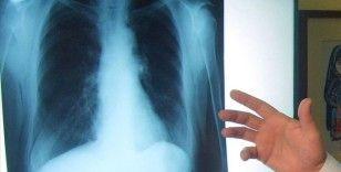 Akciğer kanserinde yeni tedavi yöntemleri sağ kalım süresini artırıyor