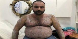 Tüm vücudunu sedef saran hasta derdine Ankara'da çare arıyor