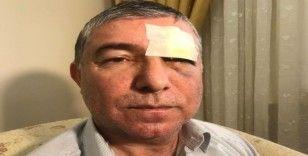 Ümraniye'de muştalı dehşet: 1 yaralı