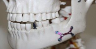 Otomobil parçası üreten Türk firması, diş implantında dışa bağımlılığa son verdi