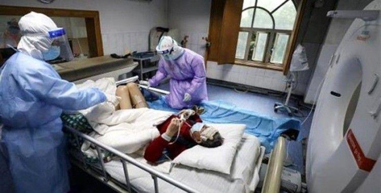 İyileşen korona hastasının akciğerinde sıvı veya parçacık dolu keseler bulundu