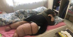Yakalandığı fil hastalığı onu  eve mahkum etti
