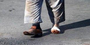 İstanbul'da 1153 kişi, kurban kesmeye çalışırken yaralandı