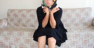 Lazer genç kadının vücudunu yaktı