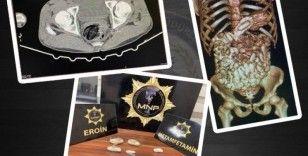 Midesinde uyuşturucu sevkiyatı yapan 2 kişi, polisin dikkati sayesinde yakalandı