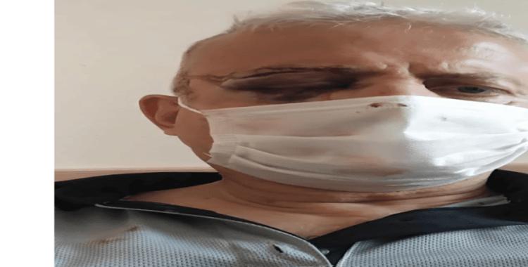 Maske uyarısında bulunduğu şahıs tarafından darp edilen güvenlik görevlisi görme yetisini kaybetti
