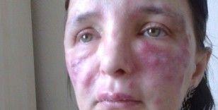 Yüzünde işlem yaptığı kadını tanınmaz hale getiren sahte doktor hakkında karar
